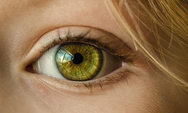 نزدیک بینی
