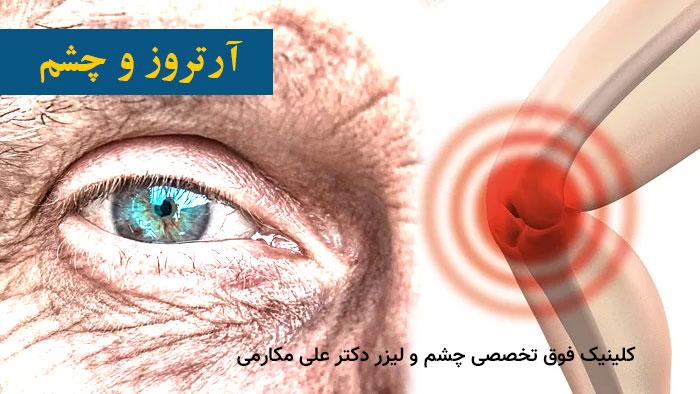 چشم و آرتروز