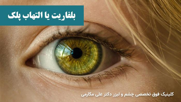 بلفاریت یا التهاب پلک