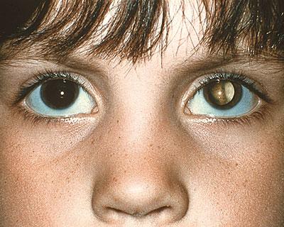 رفلکس سفید چشم