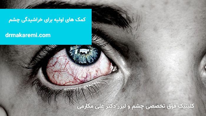 خراش چشم